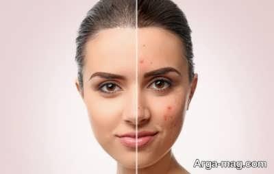 دارویی بسیار قوی برای درمان آکنههای شدید پوستی