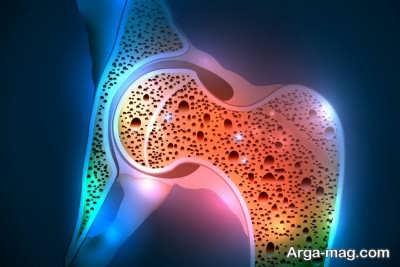 پوکی استخوان و کپسول کلسی دی ژل