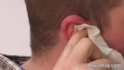 جالب ترین روش خارج کردن جرم گوش