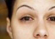 روش های درمان خانگی عفونت چشم