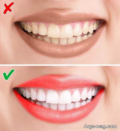 رنگ رژ لب با توجه به دندان