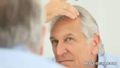 اثر تغذیه بر روی مو