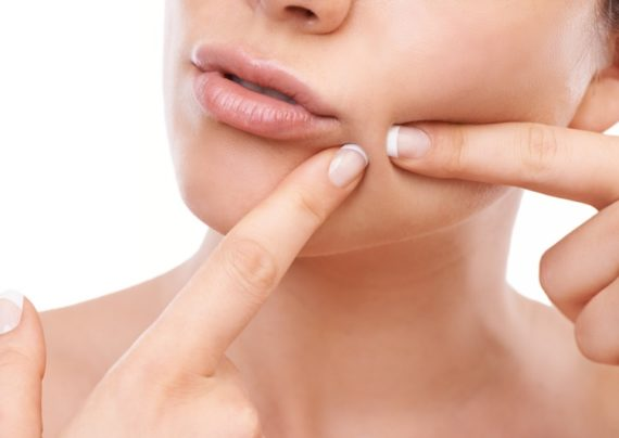 آشنایی با روش تخلیه منافذ پوست