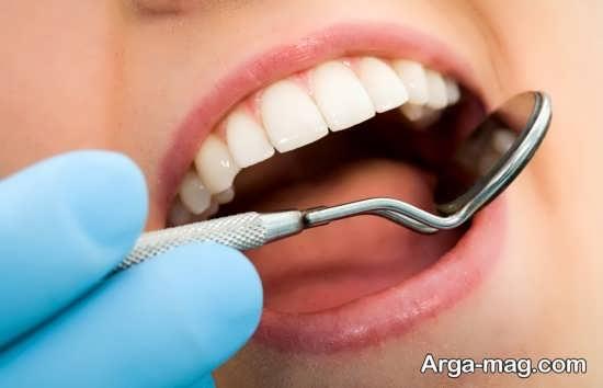 کامپوزیت دندان های خراب