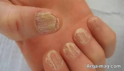 عفونت ناخن دست به چه علت است؟