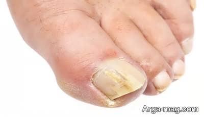 درمان عفونت ناخن دست