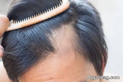 روش های درمان ریزش مو سکه ای