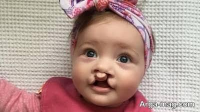 عوارض لب شکری شدن نوزاد