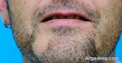 اثر گذاری روغن ارگان بر ریش ها و مو