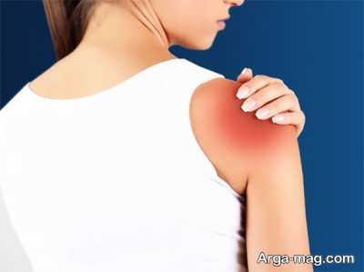 روش های پیشگیری از بیماری بورسیت