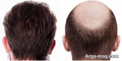 بعد از کاشت مو چه تغییری ایجاد می شود
