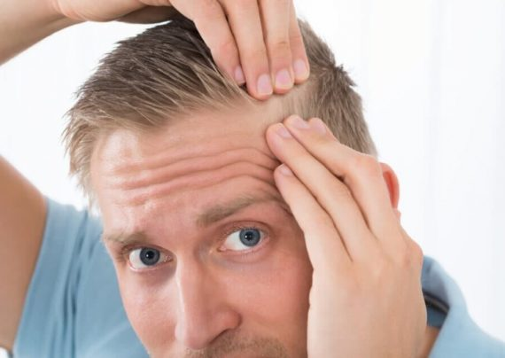 آشنایی با مراقبت های بعد از کاشت مو