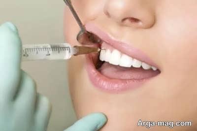 عوارض بی حسی دندان