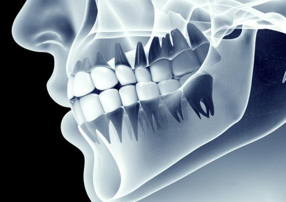 معرفی عکس رادیوگرافی دندان