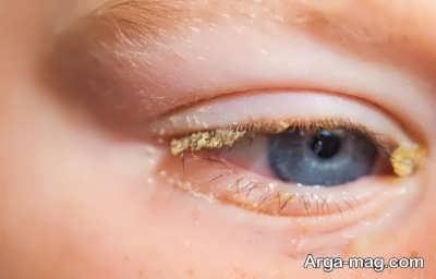 علت ترشحات چشم