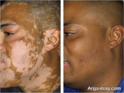 آشنایی با بیماری پوستی برص