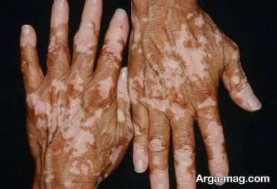روش های درمان بیماری برص