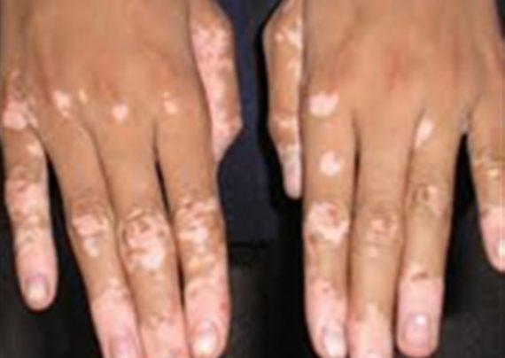 بیماری پوستی برص و روش های درمان آن