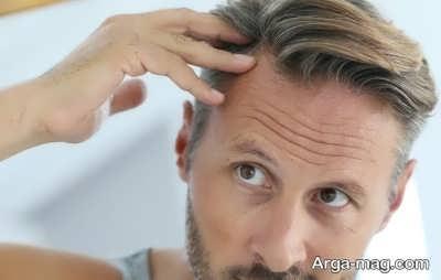 روش های پیشگیری از ریزش مو