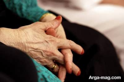 درمان برجستگی رگ های دست