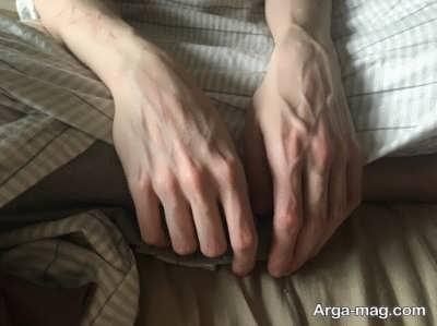 درمانی برای برجستگی رگ های دست