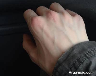 برجستگی در رگ های دست