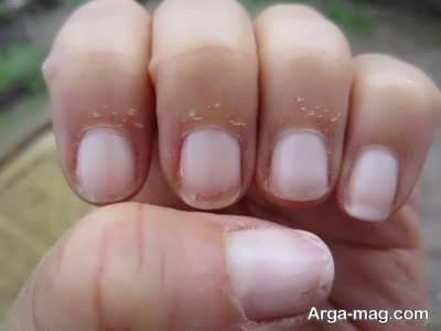 علت پوسته شدن کنار ناخن ها