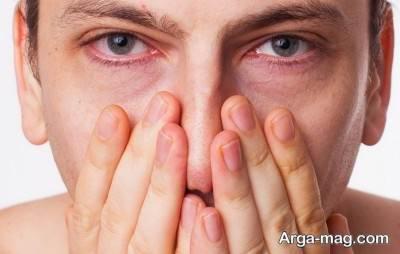 درمان قرمزی چشم ها با چای کیسه ای