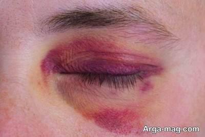 درمان کبودی چشم با چای کیسه ای