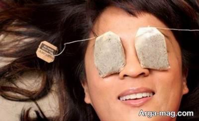 چای کیسه برای درمان پف چشم
