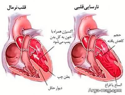 جالب ترین روش درمان نارسایی قلب