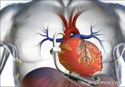 موثرترین روش ها در درمان نارسایی قلب