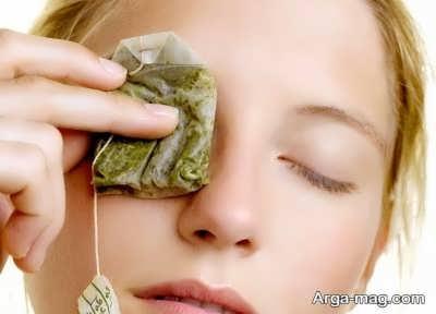 انواع روش های درمان برق زدگی چشم