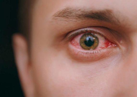 درمان برای برق زدگی چشم