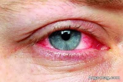 علاج برق زدگی چشم