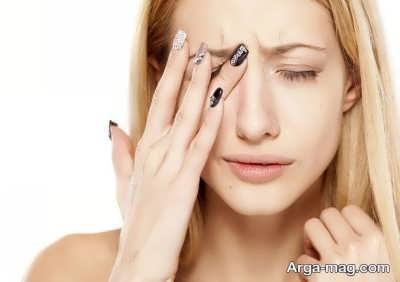 چاره بهبود برق زدگی چشم