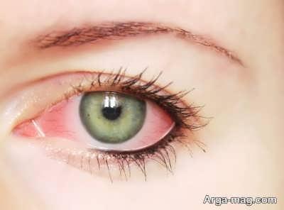 چاره برای برق زدگی چشم