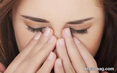 روش های علاج برق زدگی چشم