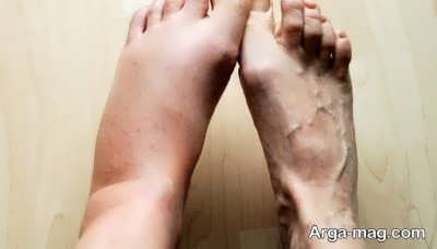 درمان لخته شدن خون در پا