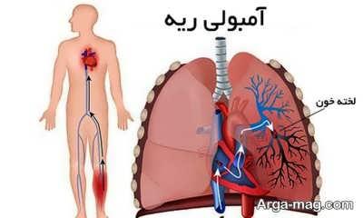 عوامل لخته شدن خون در پا
