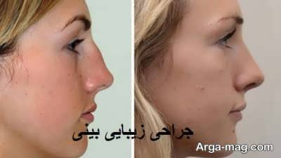 از بین بردن قوز بینی بدون جراحی