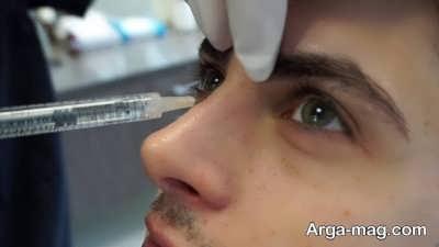 تفاوت روش های جراحی و غیر جراحی از بین بردن قوز بینی