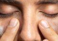 آشنایی با چگونگی رفع آفتاب سوختگی پوست