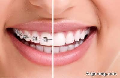 ارتودنسی ثابت برای دندان های ناهنجار