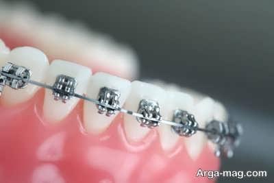 بریس ثابت دندان ها