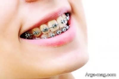 زیبا سازی دندان با ارتودنسی ثابت