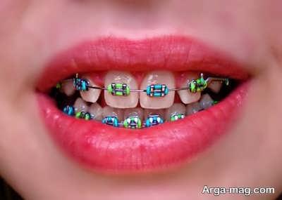 ارتودنسی ثابت برای دندان