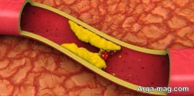 یکی از دارویی کاهنده چربی خون