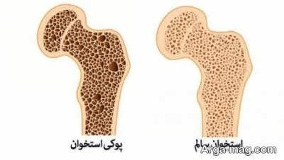 تاثیر شیر گاومیش بر سلامت استخوان ها