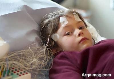 عوامل موثر بر سکته مغزی در کودکان